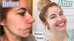 hqdefault - Rodan And Fields Body Acne