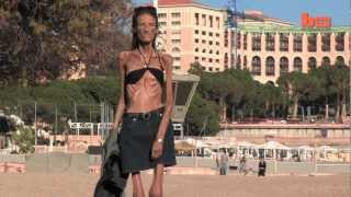 Extreme Anorexic Speaks Out