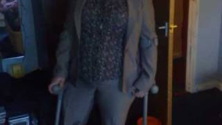 Repeat youtube video Carla a female Right above the knee RAK amputee on crutches