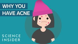 Why You May Have More Acne Than Other People