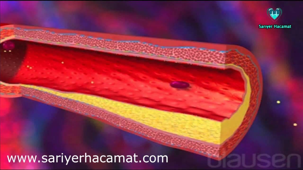 Ateroskleroz (Damar Sertliği) Nedir, Belirtileri, Tedavisi