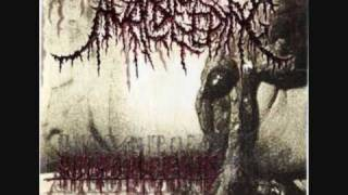 Anal Bleeding - Wrektal Discharge