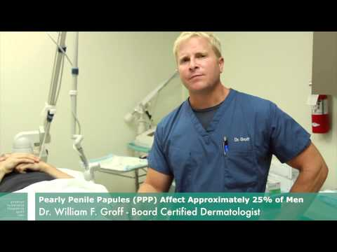 Pearly Penile Papules Removal | CO2 Laser | Dr. William Groff