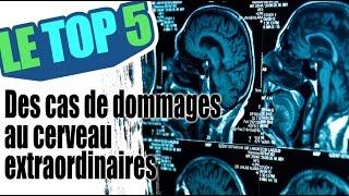Le top 5 des cas de traumatisme au cerveau extraordinaires