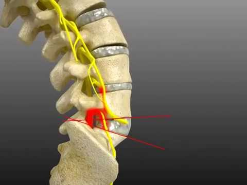 Spinal Adjustment Treatment for L4/L5 Fixation Causing Hyper Mobile L5/S1