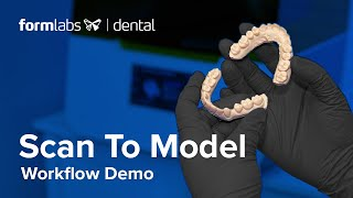 Scan to Model: How to Convert Digital Scans Into Printable Dental Models