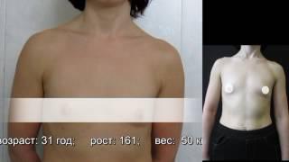 Увеличение груди - консультация до операции. Видео 101-1