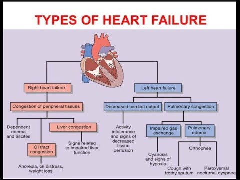 The High Cost of Congestive Heart Failure