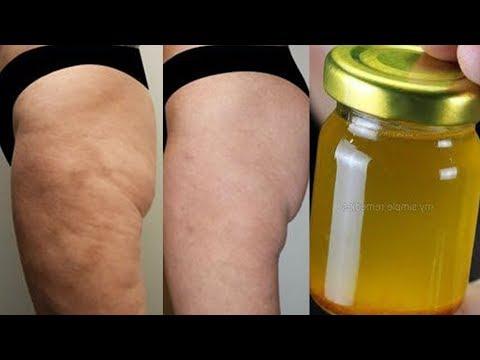 ?Aplica Después de Ducharte y Elimina la Celulitis EN SEMANAS! Elimina celulitis y Estrías