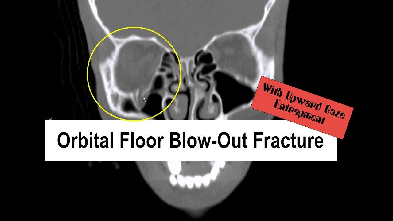 Blow Out Fracture with Upward Gaze