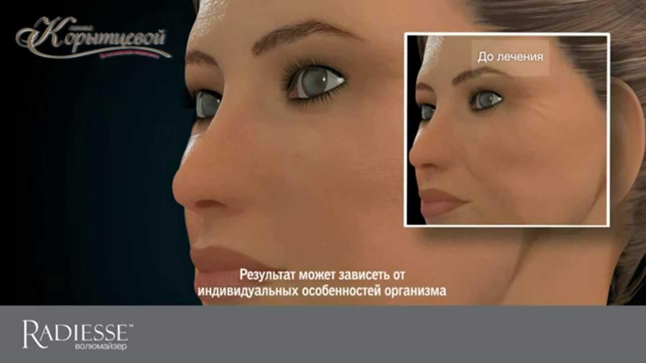 Клиника Корытцевой - Объемное моделирование лица препаратом «Radiess»