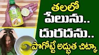 తలలో దురద, పేలు తగ్గాలంటే.. I Pela Samasya I How to Rid from Head Lice & Nits I Everything in Telugu