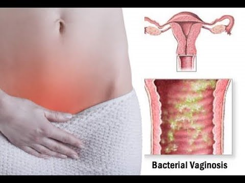 Bacterial Vaginosis (BV) : How To Cure Bacterial Vaginosis Fast and Naturally (Home Remedies)