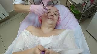 У косметолога.Сеанс аппаратной мезотерапии.