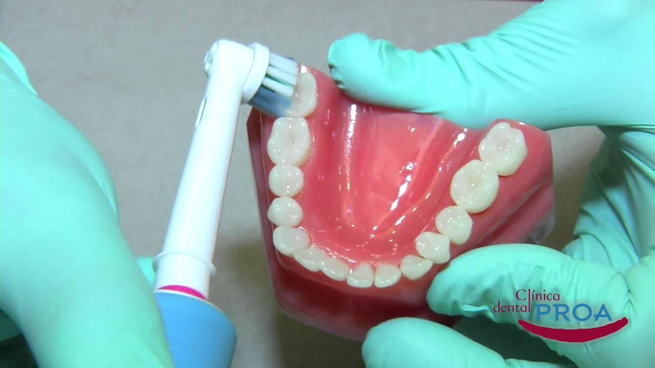 ¿Cómo cepillarse los dientes con un cepillo eléctrico  - YouTube 17cc645f006a
