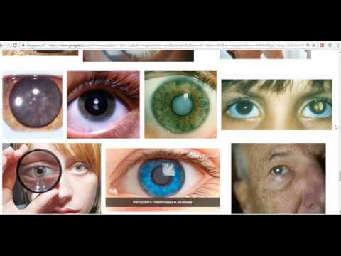 Катаракта глаза. Признаки и симптомы катаракты. Лечение