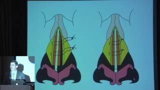 15 A Landecker   Refinements In Secondary Rhinoplasty