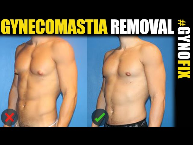Gynecomastia Surgical Treatment by Male Plastic Surgery Expert