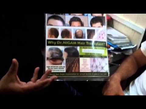 Hair Transplant 2014 in Mumbai, India, BIOFUE - ST