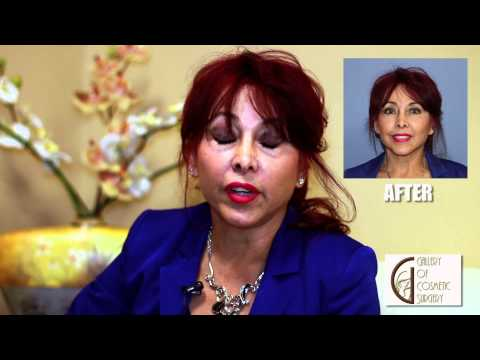 Orange County Natural Face and Neck Lift - Dr Sadati Newport Beach