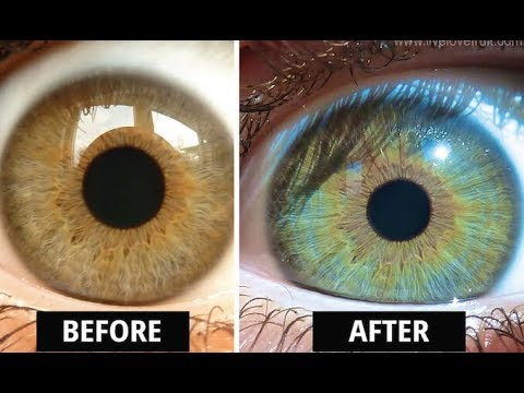 How Raw Diets Can Actually Change The Colour Of Your Eyes