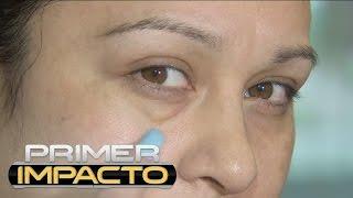 Acido con hialuronico ojeras de tratamiento