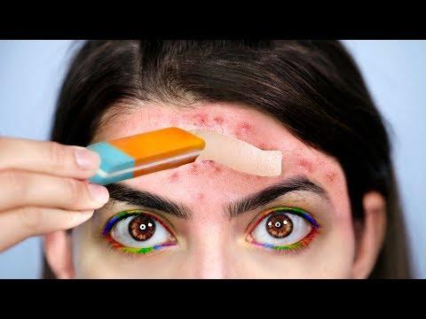 Weird Acne Life Hacks EVERYONE Should Know!