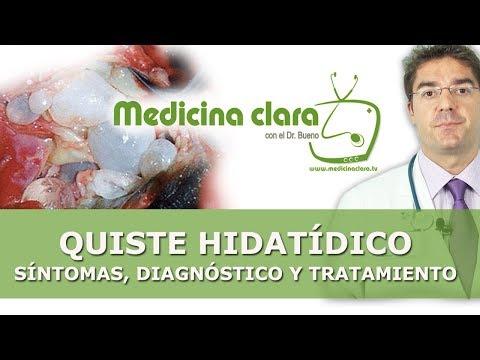 Quistes hidatídicos | Quistes en hígado | Quistes en pulmón | Hidatidosis