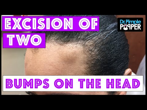 Surgical removal of two different bumps on the head