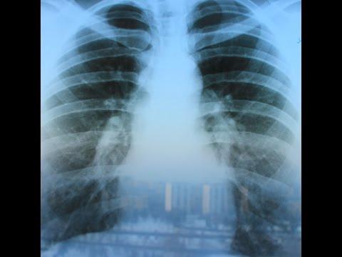 Пневмосклероз: что это такое, и как лечится?
