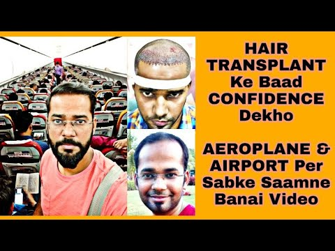 Cure for Alopecia, Hairfall, Baldness - Baba Ramdev from YouTube · Duration:  6 minutes 15 seconds