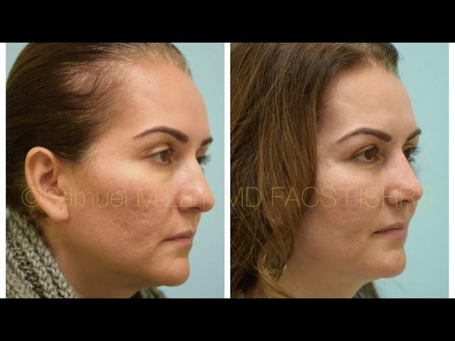 Dallas Rhinoplasty, Periorbital Fat Transfer, Lower Blepharoplasty & Lip Microfat Before and After