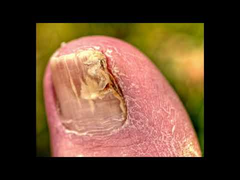 toenail fungus and oregano oil