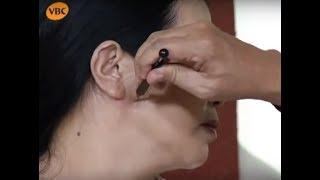 Hướng dẫn cách chữa viêm họng bằng diện chẩn