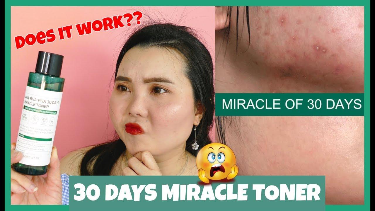 TONER TRỊ MỤN TRONG 30 NGÀY CÓ THỰC SỰ THẦN THÁNH?! //30 DAYS MIRACLE TONER // Some by Mi