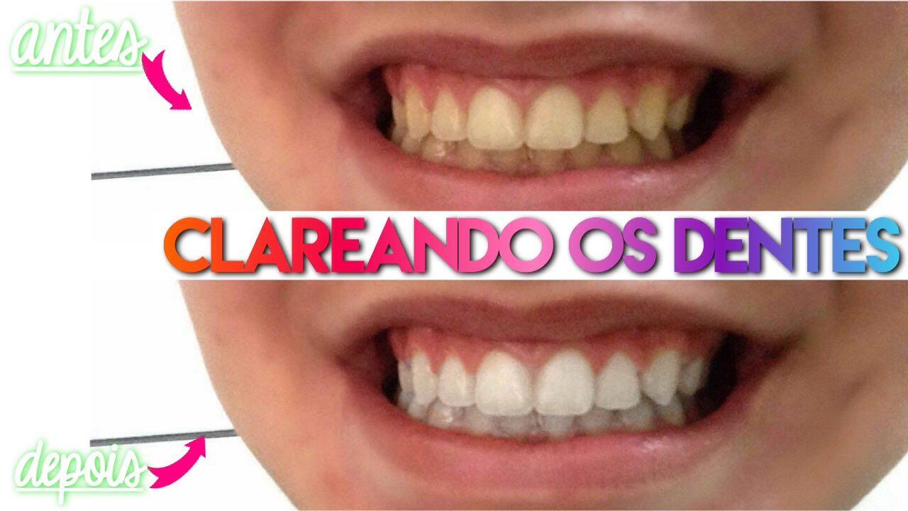 Como Clarear Os Dentes Facil Em Casa Youtube