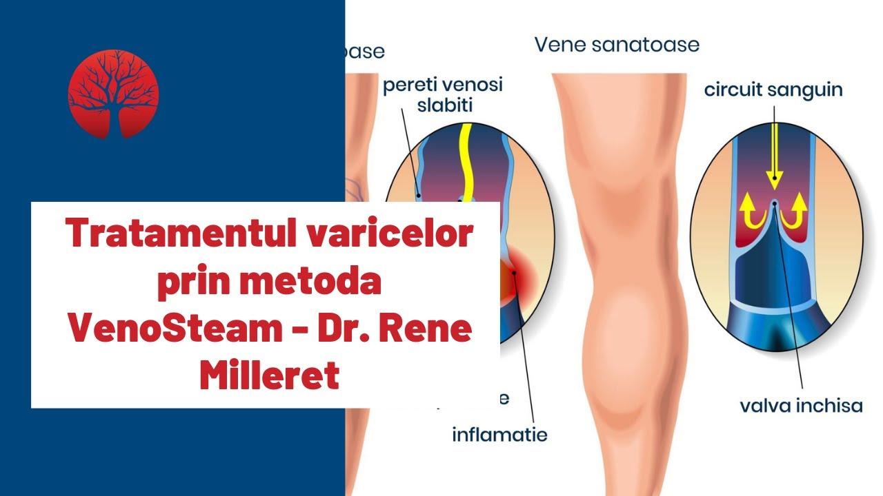 tratamentul medicinal pentru venele varicoase