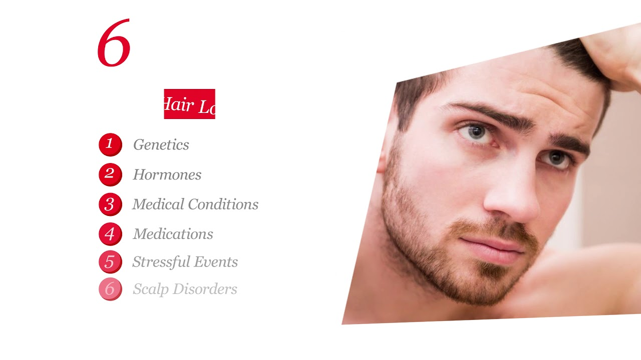 6 Common Causes Of Hair Loss In Men Healthy Essentials