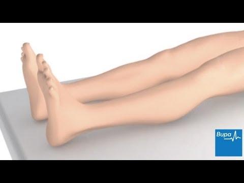 bupa varicose veins