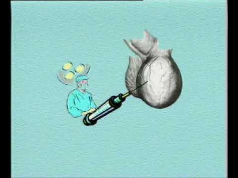 卫生部医学视听教材—普通外科—PW012 鞘膜积液
