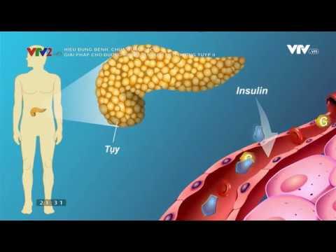 Bệnh tiểu đường tuýp 2 – Tư vấn cách trị hiệu quả ngăn biến chứng