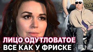 Как сейчас выглядит Анастасия Заворотнюк мнение профессора