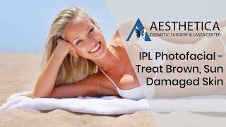 IPL Photofacial to treat Brown Sun-Damaged Skin - Phillip Chang M.D. - www.gotobeauty.com - 703-729