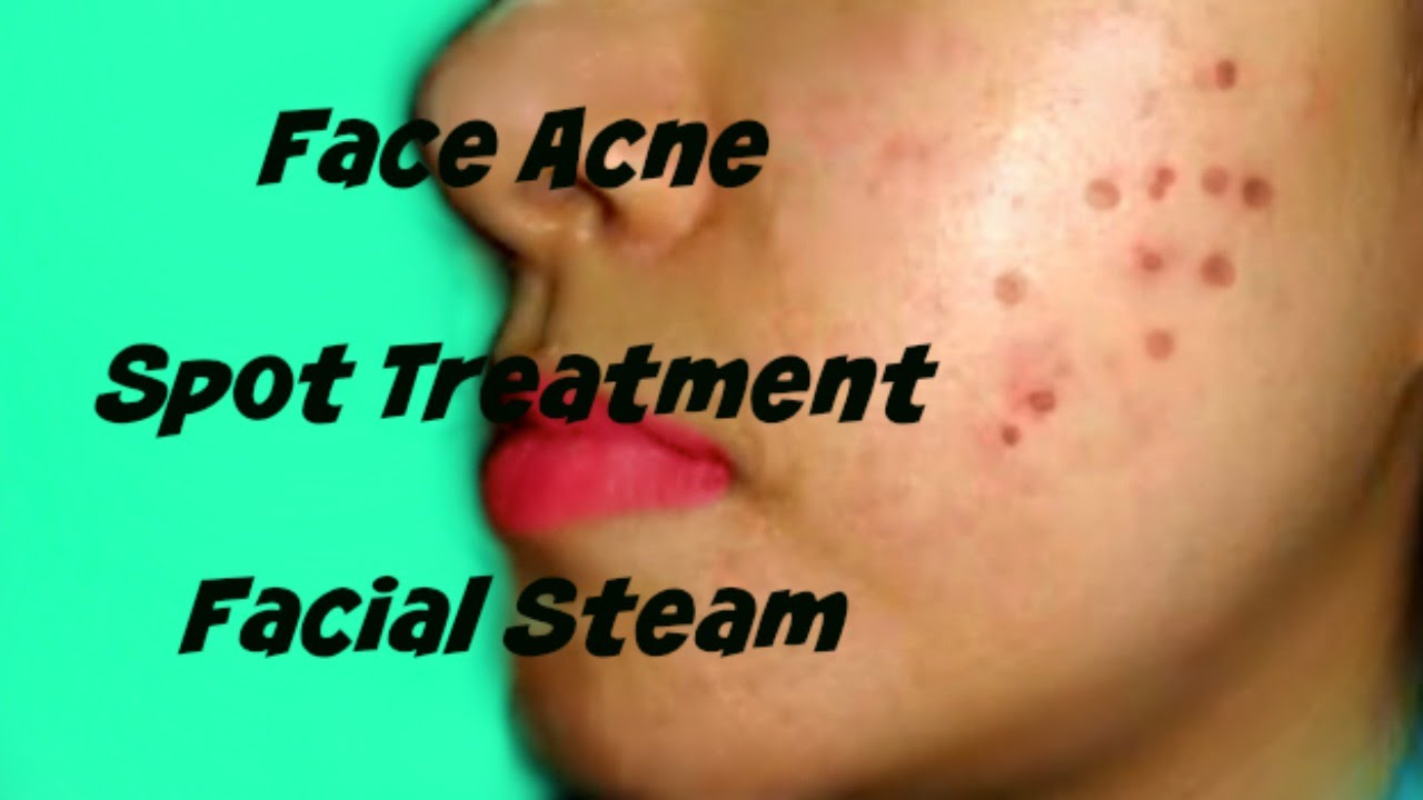 Reply))) home remedy steam facial more detail