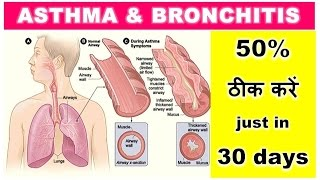 Cure Asthma & Bronchitis, 50% ठीक करें Asthma & Bronchitis just in 30 days, 18 Solutions, Dr Shalini