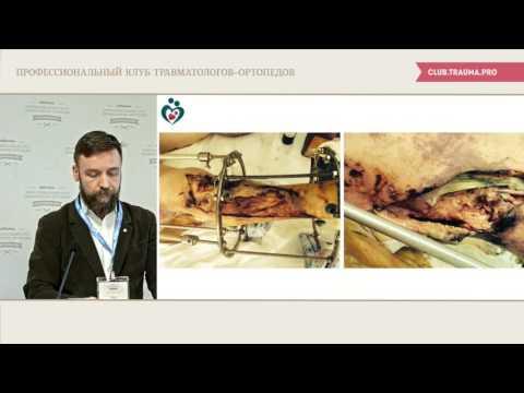 Тактика лечения обширных скальпированных ран конечностей. Слепнев С.Ю.