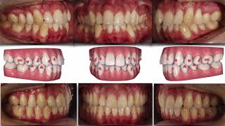 Invisalign course.Severe crowding. Treated Non extraction
