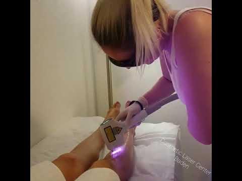 2000W high power 755+808+1064nm hair removal treatment video