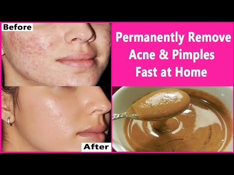 hqdefault - How To Cure Acne In 3 Days At Home