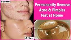 hqdefault - Cure Acne 3 Days